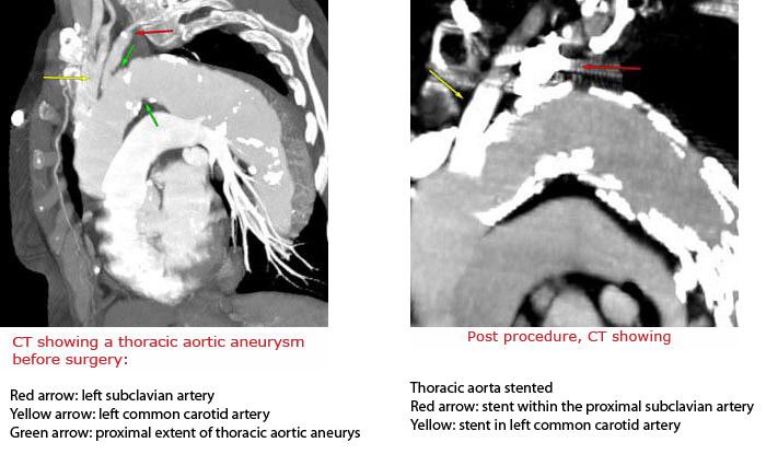 Aortic Disease
